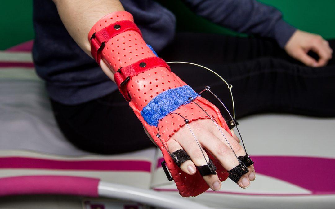 Майстер-клас «Динамічне ортезування кисті та пальців верхньої кінцівки: виготовлення ортезів-тренажерів» 09 лютого 2019 р.